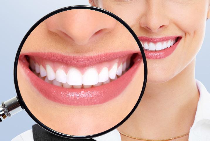 diagnostic-dentaire